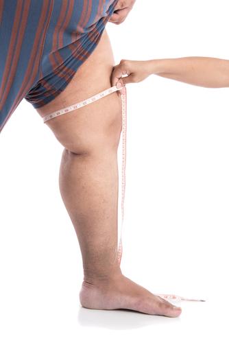 Похудеть мужчине без диет в ногах и бедрах