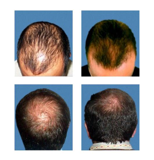 Ля рош позе против выпадения волос отзывы