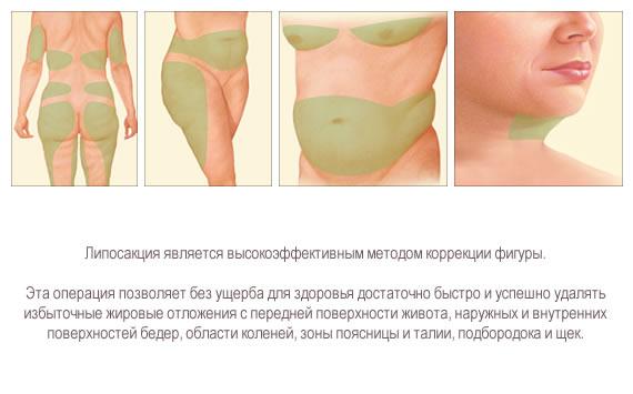 сжечь жир в районе живота