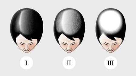 Выпадают волосы нужна помощь