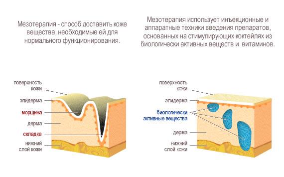 Цены на процедуру Мезотерапия