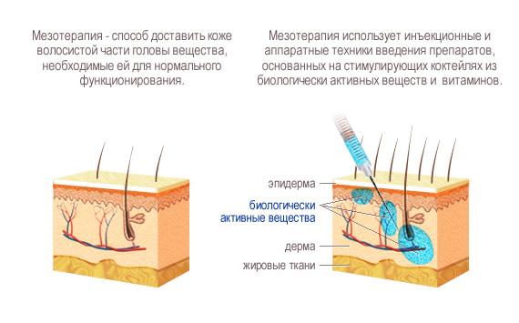Мезотерапия (волосы)